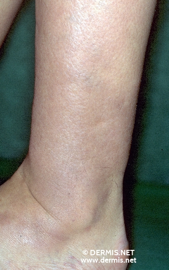 diagnosis: Myxoedema, Pretibial