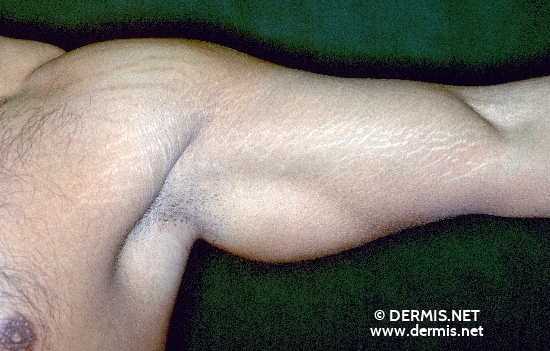 diagnosis: Striae Distensae