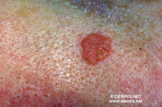 diagnosis: HPV Akanthoma