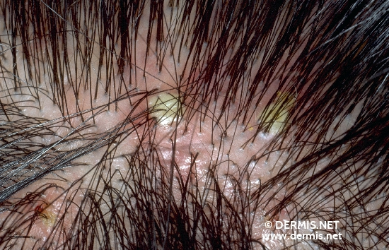 diagnosis: Secondary Tufted Hairs Folliculitis Decalvans Capillitii