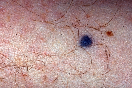 diagnosis: Blue Nevus Nevocytic Nevus