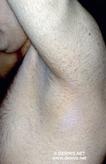 diagnosis: Pityriasis Lichenoides Chronica