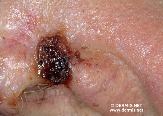 diagnosis: Basal Cell Carcinoma, Ulcerating