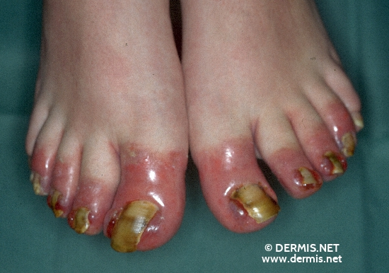 diagnostic: Dermatite de contact irritante aiguë Ongle incarnée