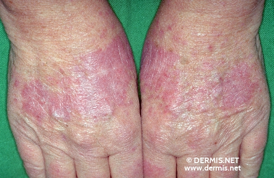 Diagnose: Lupus erythematodes visceralis