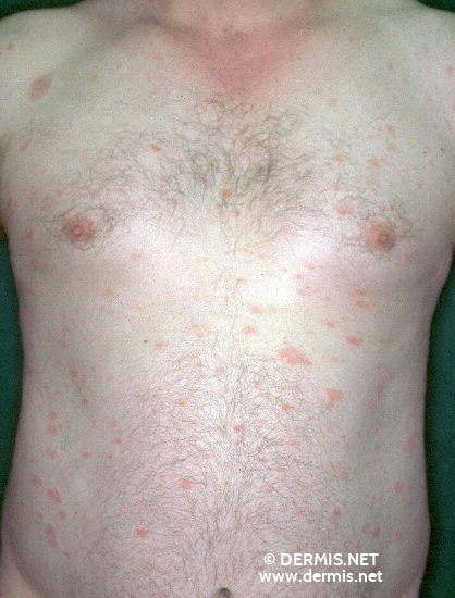 diagnosis: Pityriasis Rosea