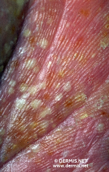 diagnosis: Pustular Psoriasis of the Palms and Soles