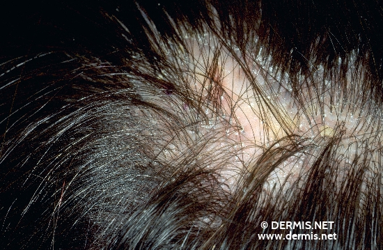 diagnostic: Secondary Tufted Hairs Lupus érythémateux discoïde
