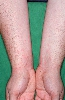 Lokalisation: Unterarme, Diagnose: Raupenhaardermatitis