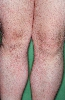 localisation: legs, diagnosis: Caterpillar Dermatitis