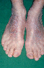 localisation: back of the feet, diagnosis: Mycosis Fungoides