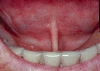 localisation: sublingual, Unterlippe, Diagnose: Sklerodermie, progressiv, Cheilitis actinica