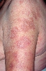 localisation: upper arms, diagnosis: Subacute Cutaneous Lupus Erythematosus SCLE