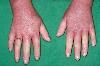 localisation: back of the hands, diagnosis: Progressive Systemic Scleroderma