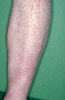 Lokalisation: Unterschenkel, Diagnose: Acrodermatitis chronica atrophicans Herxheimer