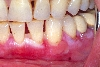 localisation: gingiva, diagnosis: Benign Mucosal Pemphigoid