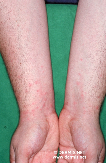 localisation: lower arms diagnosis: Caterpillar Dermatitis