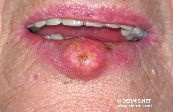 localisation: lower lip diagnosis: Keratoacanthoma