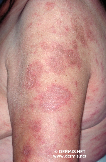 localisation: upper arms diagnosis: Subacute Cutaneous Lupus Erythematosus SCLE