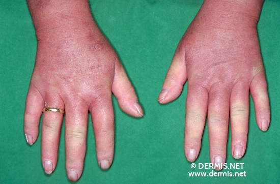 localisation: back of the hands diagnosis: Progressive Systemic Scleroderma