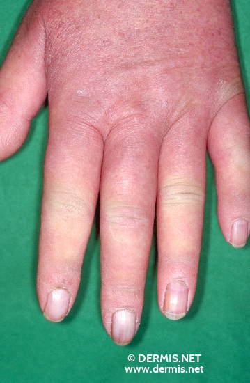 localisation: back of the hands finger diagnosis: Progressive Systemic Scleroderma Raynaud's Syndrome