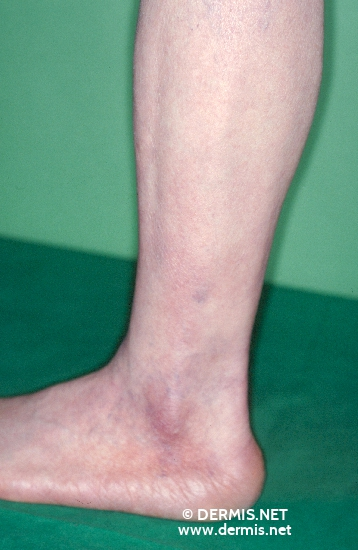 localisation: lower leg diagnosis: Acrodermatitis Chronica Atrophicans Herxheimer
