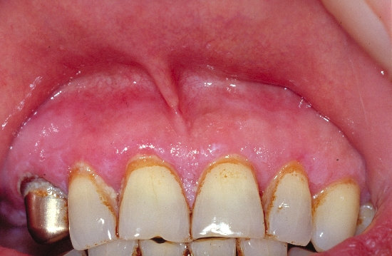 localisation: gingiva diagnosis: Benign Mucosal Pemphigoid