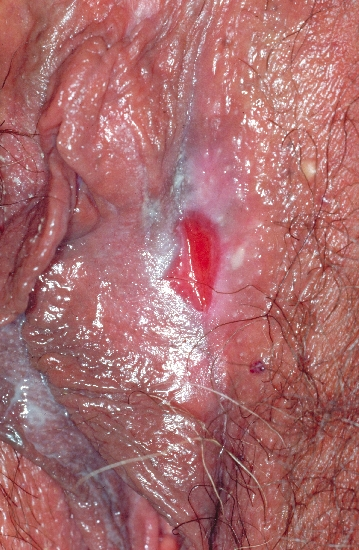 localisation: anogenital region diagnosis: Benign Mucosal Pemphigoid