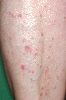 localisation: lower leg, diagnosis: Lichen Planus