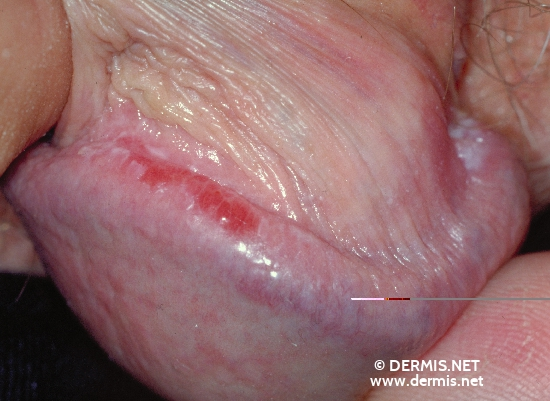 localisation: glans penis diagnosis: Lichen Planus of the Mucosa