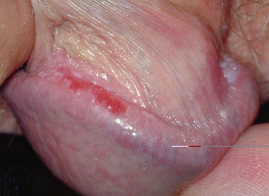 Lichen planus - Treatment - NHS Choices