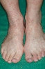 localisation: back of the feet, diagnosis: Cercaria Dermatitis
