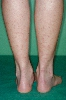 localisation: lower leg, diagnosis: Cercaria Dermatitis