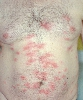 localisation: trunk, diagnosis: Cercaria Dermatitis