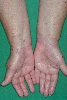 localisation: lower arms, diagnosis: Lichen Planus