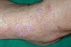 localisation: elbow, diagnosis: Lichen Planus