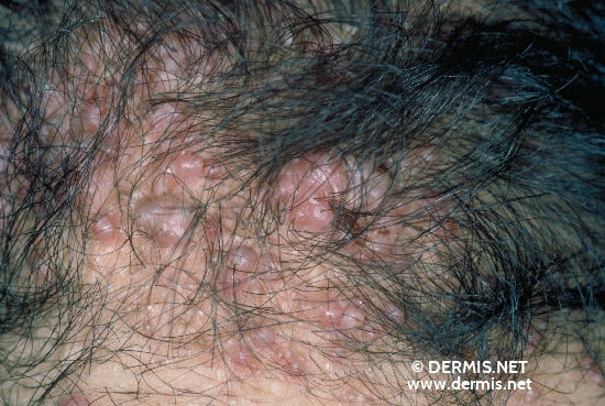 localisation: occipital scalp diagnosis: Follikulitis Keloidalis Nuchae