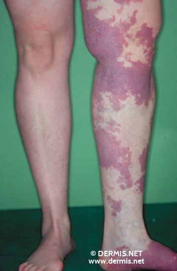 localisation: lower leg diagnosis: Klippel-Trenaunay-Weber Syndrome