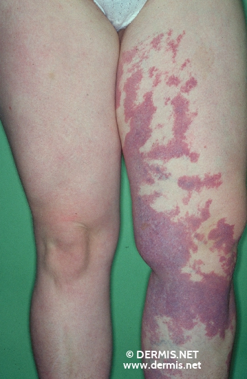 localisation: upper leg diagnosis: Klippel-Trenaunay-Weber Syndrome