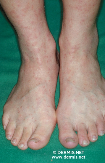 localisation: back of the feet diagnosis: Cercaria Dermatitis