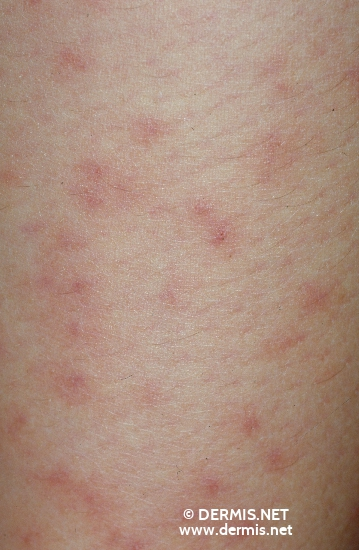 localisation: lower leg diagnosis: Cercaria Dermatitis
