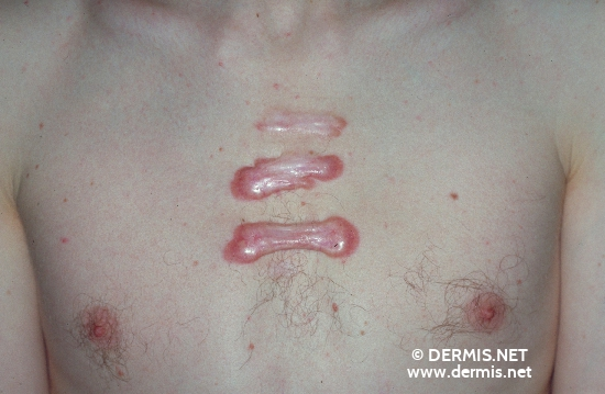 localisation: chest diagnosis: Keloids in Scars