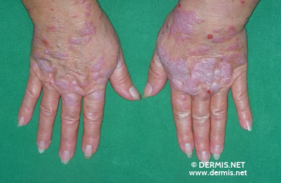 localisation: hands diagnosis: Lichen Planus