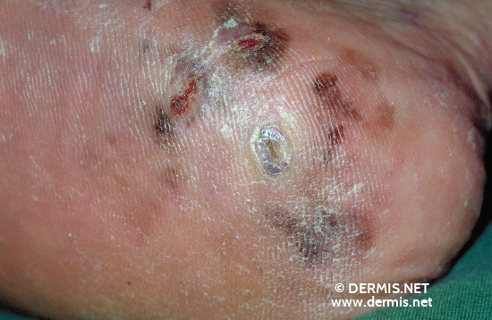 localisation: heel diagnosis: Acrolentiginous Melanoma (ALM)
