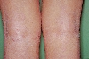 localisation: hollow of the knee, diagnosis: Atopic Eczema