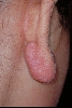 localisation: lobule of auricle, diagnosis: Keloids in Scars