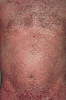 localisation: trunk, diagnosis: Pityriasis Rubra Pilaris Devergie
