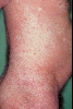 localisation: Flanke, Diagnose: Pityriasis rubra pilaris Devergie