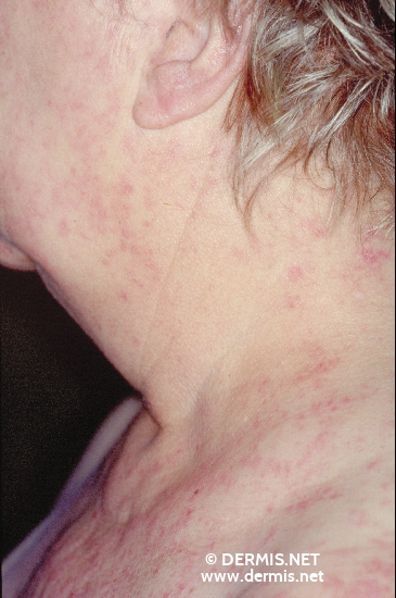localisation: Hals Diagnose: Lupus erythematodes visceralis