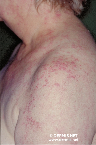 localisation: shoulder region diagnosis: Systemic Lupus Erythematosus